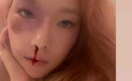 泰妍,突如其来的猎奇自拍,韩国人:真的要去精神病院了